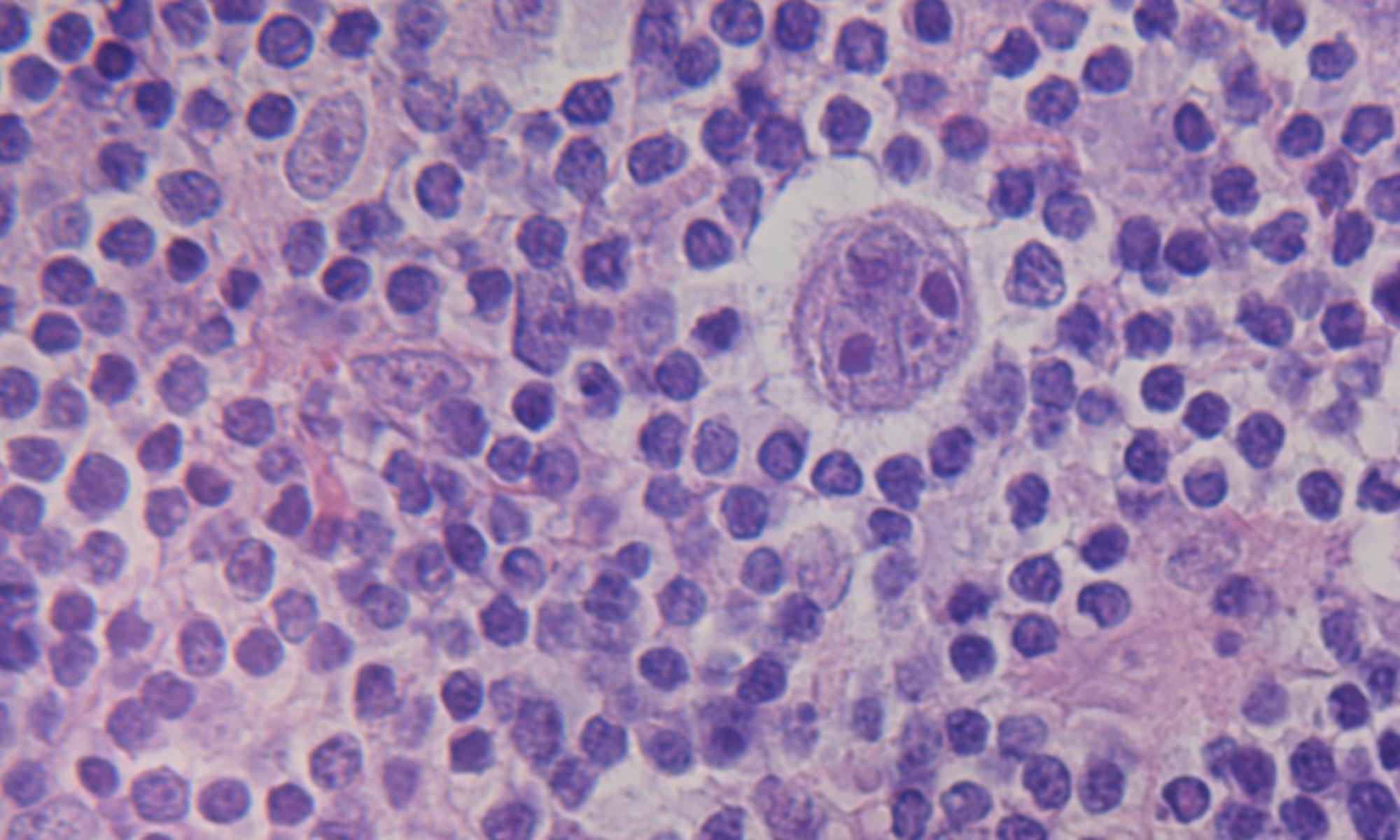 The Hodgkin Lymphoma MRD Consortium